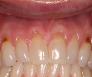 Before & Afters  - The Premier Dental Team